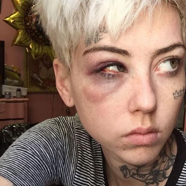 illma-gore-assaulted-trump-supporter