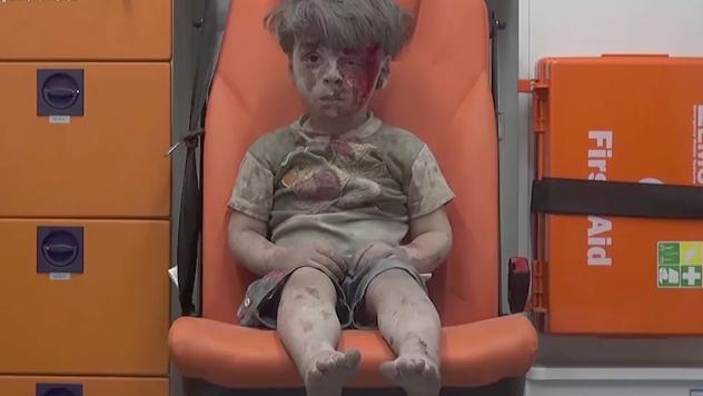 Фотография, шокировавшая мир: раненый ребенок изСирии