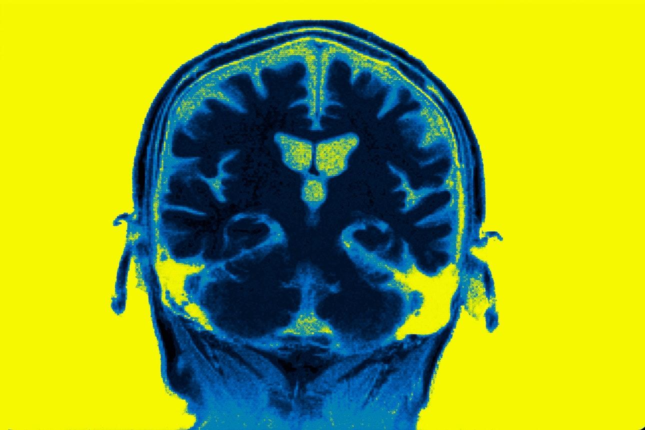 brains_03