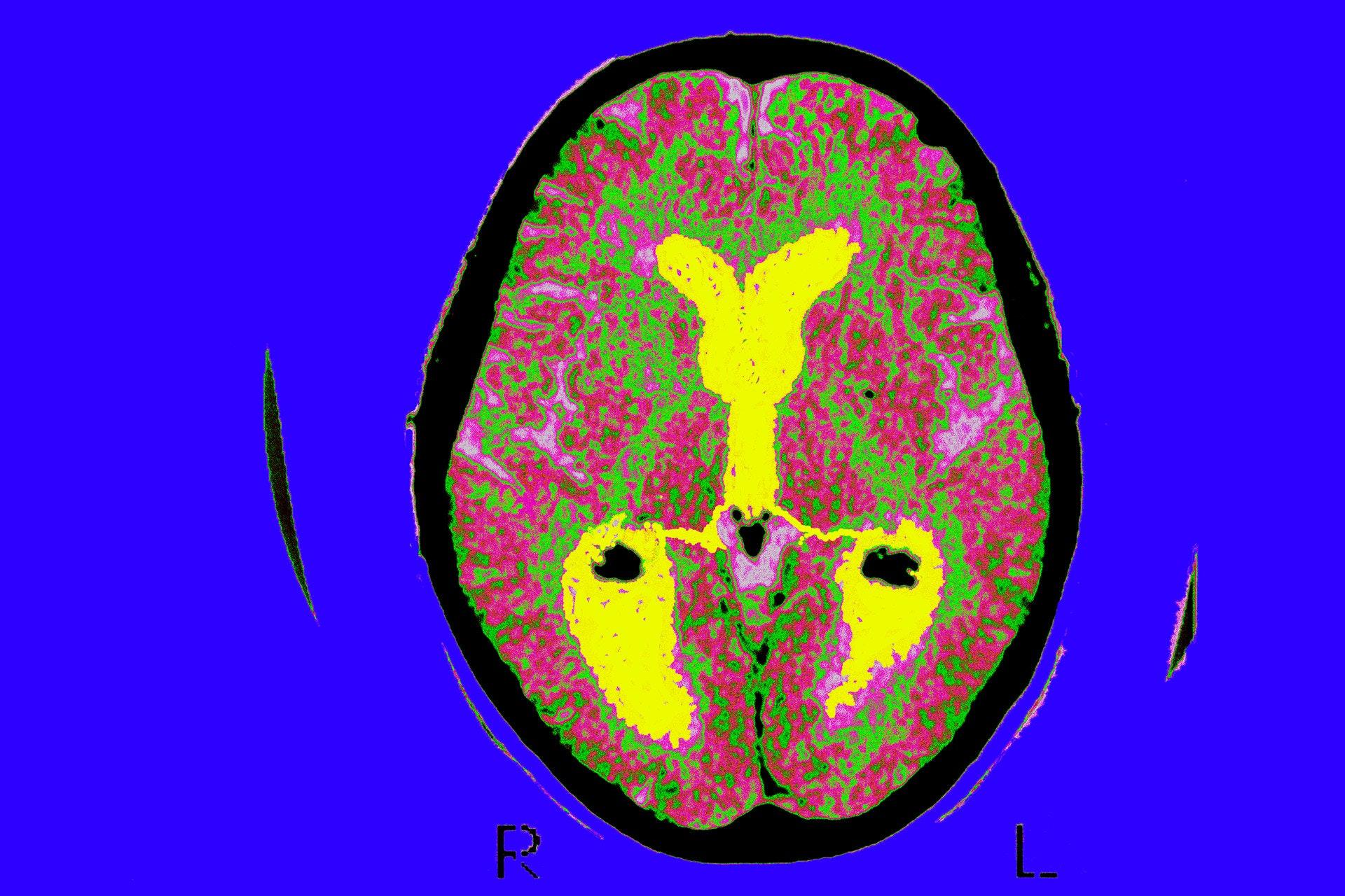 Я — нейробиолог. Вот 5 важных фактов о мозге, о которых я узнал за 30 лет работы картинки