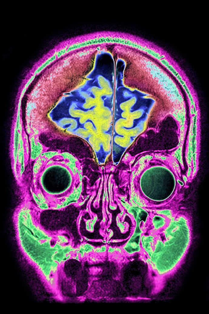 brain_07